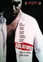 Ablations
