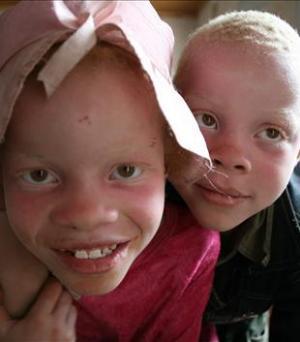 Albinomord i Afrika (Albinos d'Afrique) (TV)
