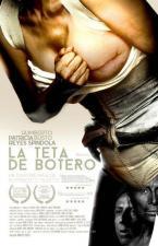 La teta de Botero (C)