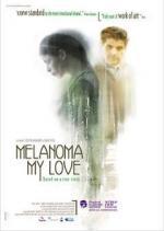 Melanoma my love