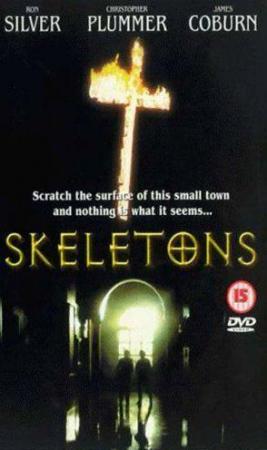 Skeletons (TV)