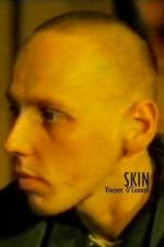 Skin (C)
