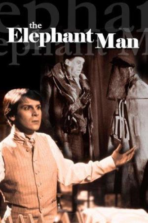 El hombre elefante (TV)
