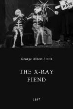 The X-Rays (S)