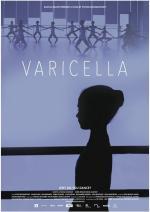 Varicella (S)